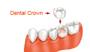 Dental Crowns treatment Miami